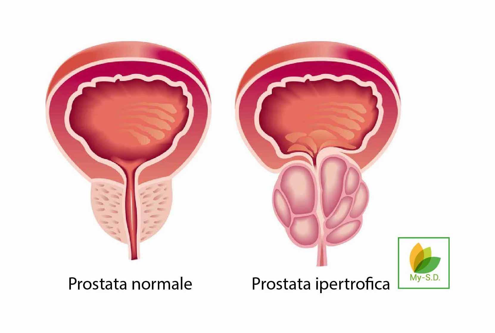 comune raffreddore causa disfunzione erettile