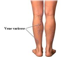 vene-varicose